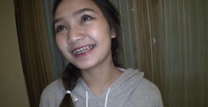 Thai girl in braces and contacts